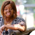 BURN SURVIVOR - KECHI OKWUCHI